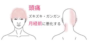 症例イラスト_頭痛_O.Y_20170822