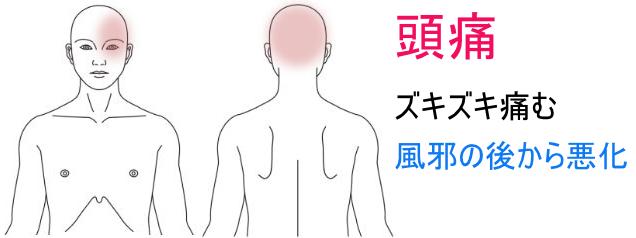 頭痛_症例34