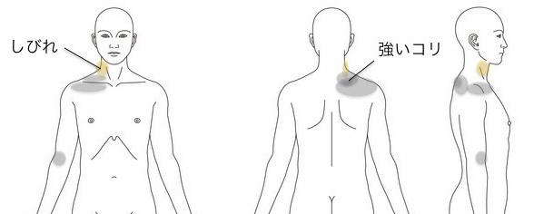 肩こりの鍼灸治療_症例_KMKT020814
