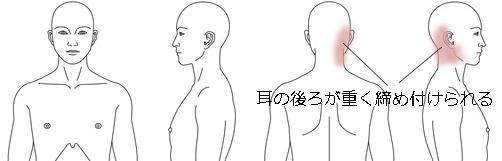 鍼治療_頭痛症例図_30_KMOK070315