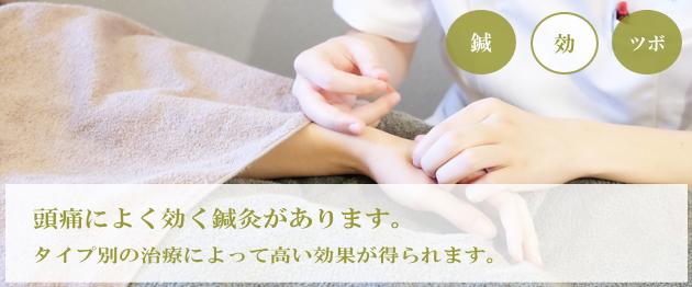 頭痛の鍼灸