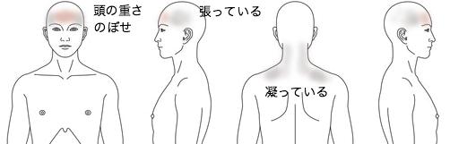 頭痛_症例_HM