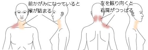 鍼治療_改善例_ 肩こり_KFEK010415