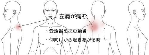 鍼灸_肩痛_改善報告_KAFOM250416