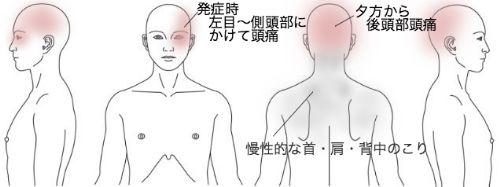 鍼灸_頭痛_症例_KAMTM211015