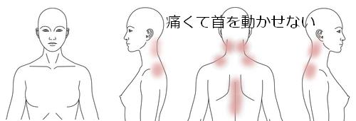 カポス_鍼治療_肩こり_症例_KFIC032815