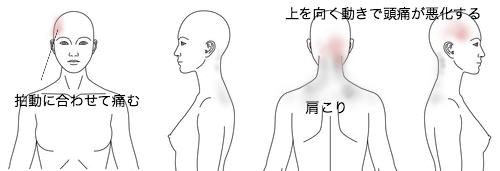鍼治療_頭痛_症例29_KFMC140114