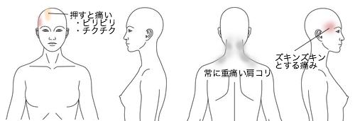鍼灸_頭痛_症例25