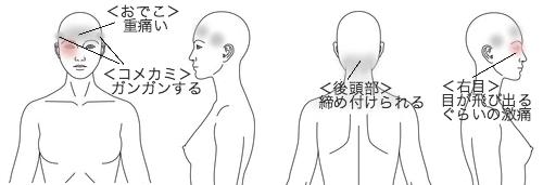 鍼灸_頭痛_症例32_KFTT060315