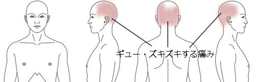 鍼治療_頭痛_症例28_KMAM041114