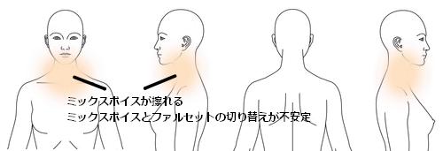 鍼灸_喉のケア_症例図_WA