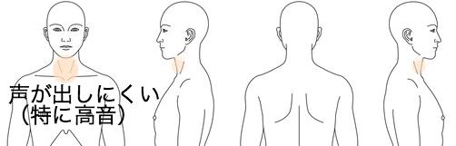 鍼灸_喉(声が出しにくい)_感想_KMKS040415