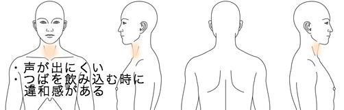 カポス_鍼治療_症例_のど_KMOK030415