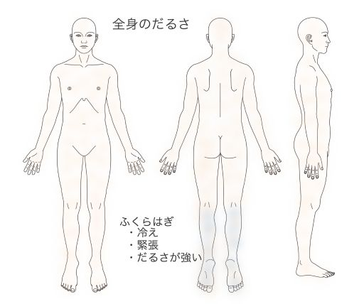 鍼灸_症例_体のだるさ_解説図KMTM180715