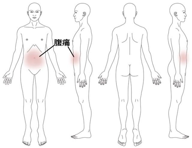 鍼灸_症例_腹痛_KMSH200914]