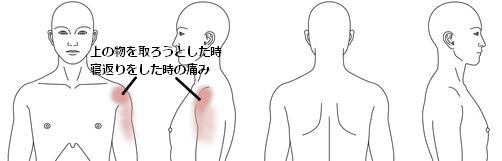鍼治療_改善例_五十肩_KMSJ051214