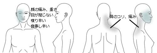 鍼灸_症例_顔面神経麻痺(図説)_MC様