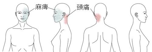 カポス_鍼治療_顔面神経麻痺の症例