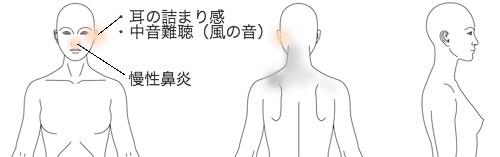 鍼治療_症例_突発性難聴_KFUE270715