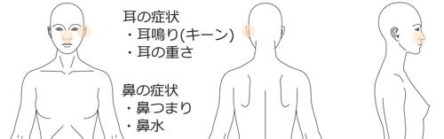 鍼治療_症例_耳鳴_KFMA150315