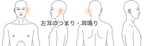 鍼灸_耳鳴り・耳のつまり_KAMOS141115