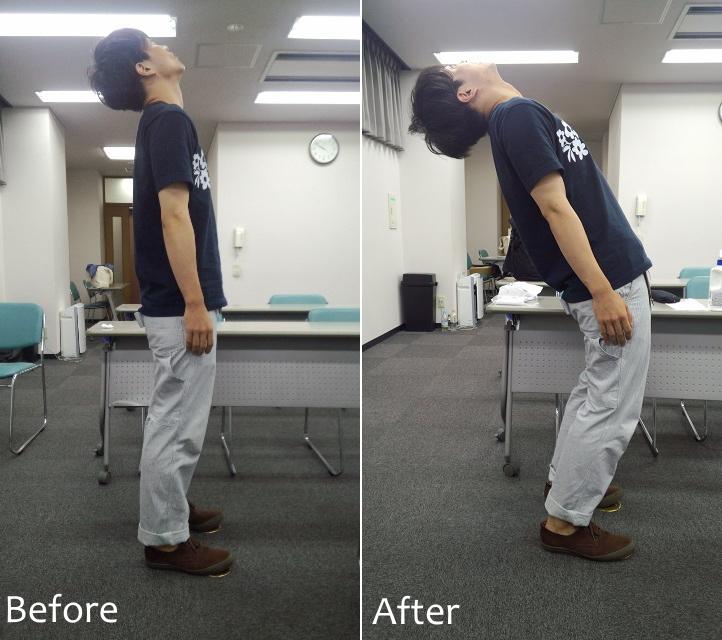 鍼治療後のチェックで腰を反る