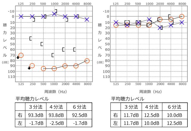 オージオグラム(聴力検査表)の...